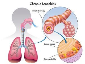 Bronchitis cron