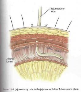 laparoscopic_gastrostomy2