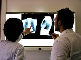 x ray broncitis
